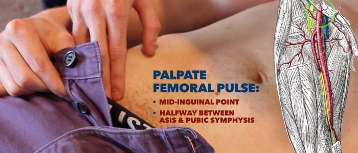 Palpate femoral pulse
