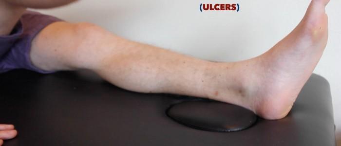 Inspect back of legs