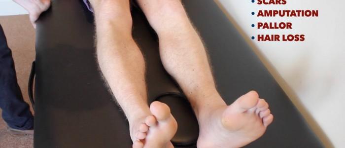 Inspect legs