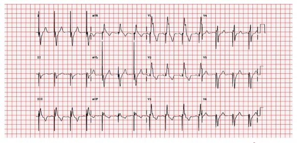 ECG showing pacing spikes