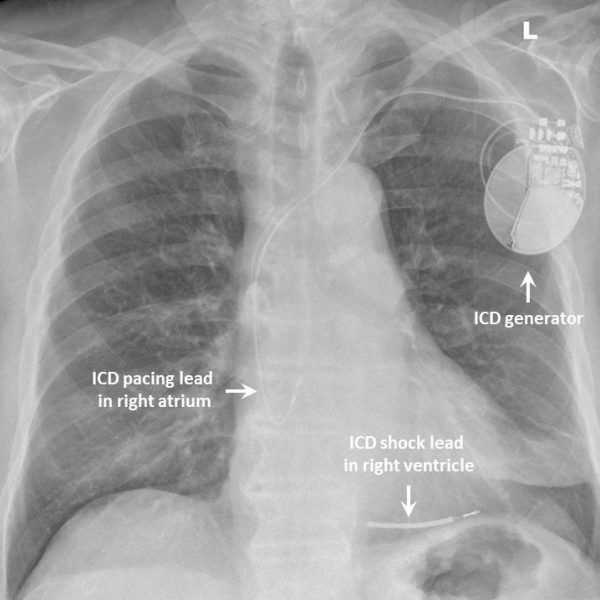 ICD chest x-ray