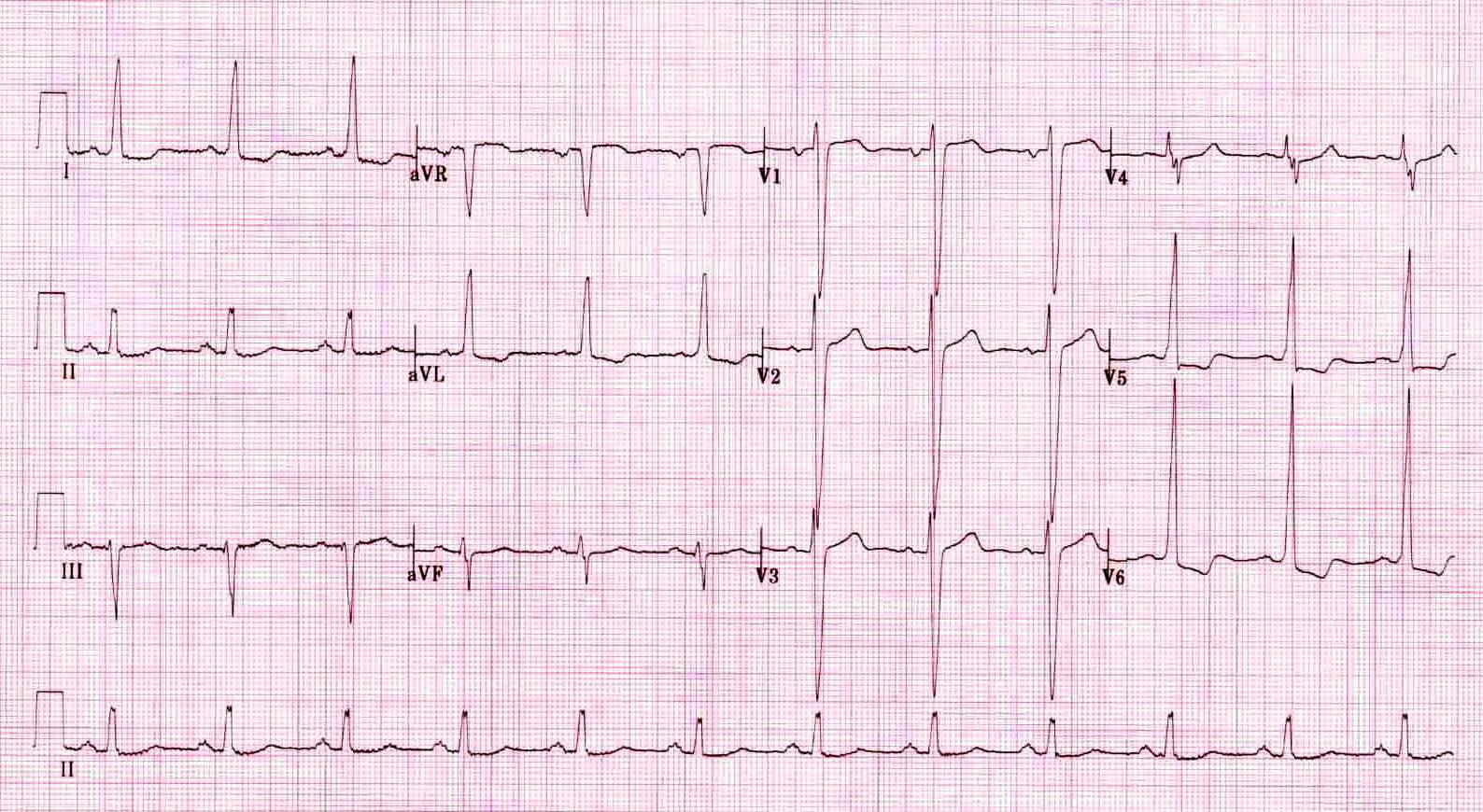 ECG  A Pictorial Primer  MedicineOnLinecom