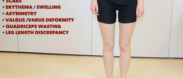 Knee examination (inspection)