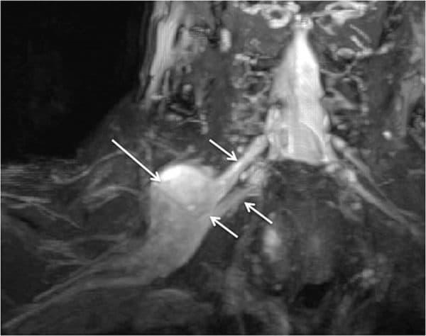 MRI peripheral nerve sheath tumour of upper trunk