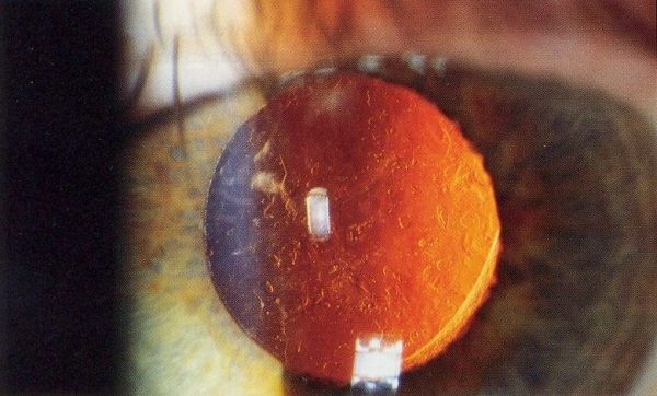 Posterior capsular opacification