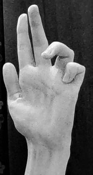 claw hand deformity