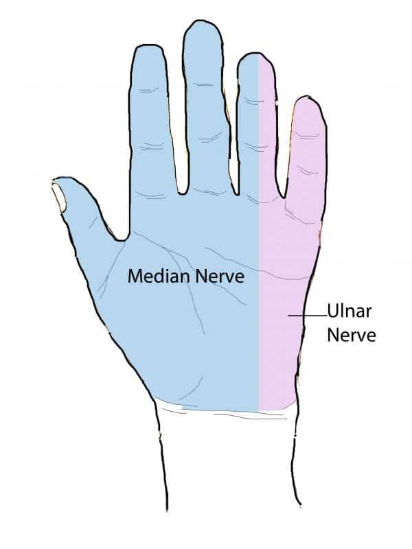 Hand dermatomes (palmar)
