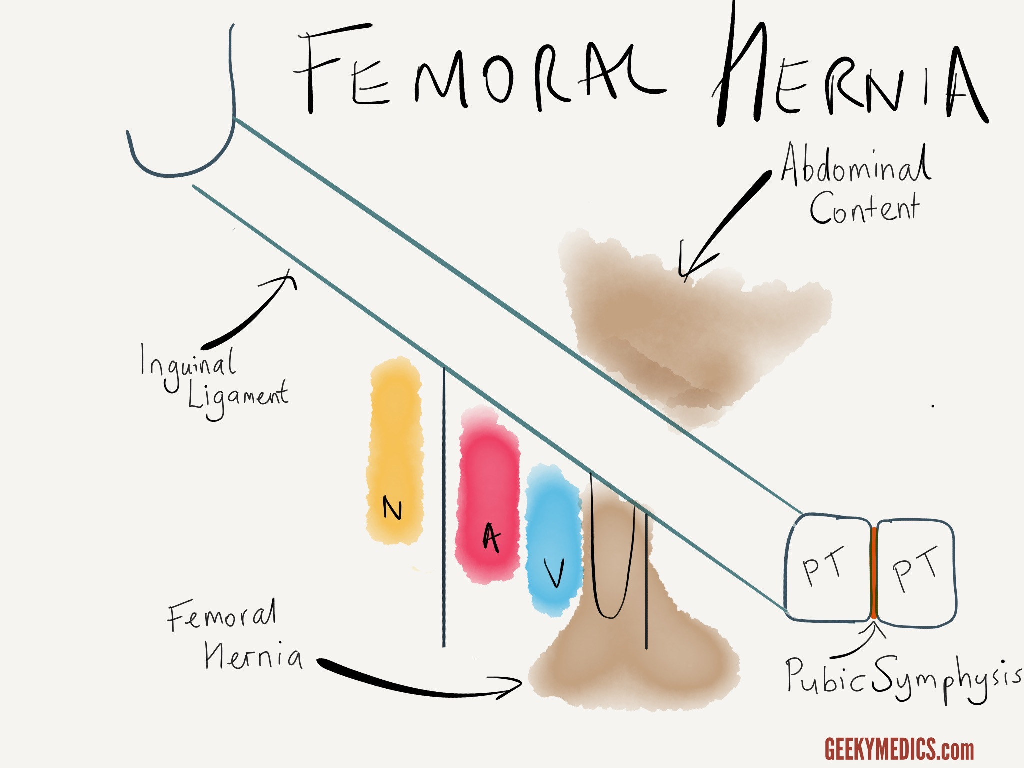 Hernias Explained | Inguinal Canal Anatomy | Geeky Medics