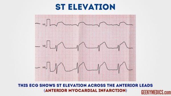 ECG - ST elevation