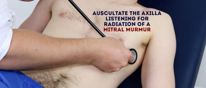 Radiation of mitral murmur
