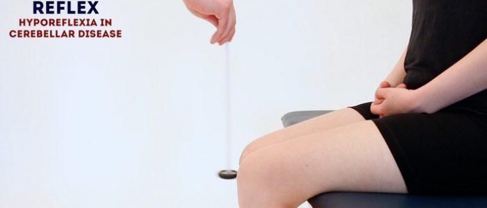knee reflexes