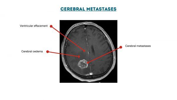 Cerebral metastases