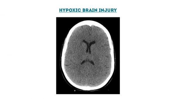 Hypoxic brain injury