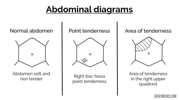 Abdominal diagrams