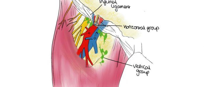 Thigh gland inner Lump on