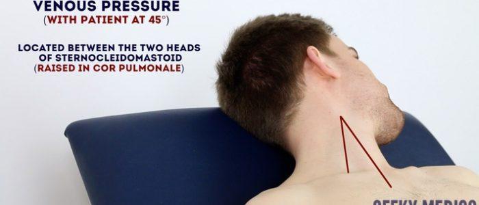 jugular venous pressure (JVP)