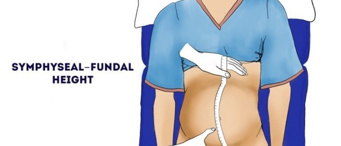 Fundal height (obstetric abdominal examination)