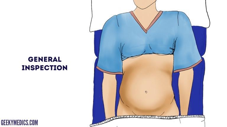 Obstetric Abdominal Examination - OSCE Guide | Pregnant Examination |