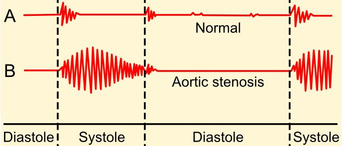 Heart sounds - aortic stenosis