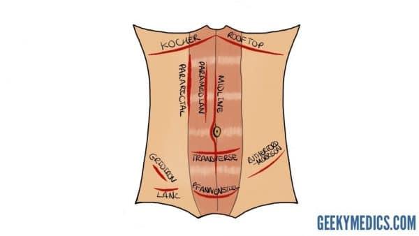 Transverse incision