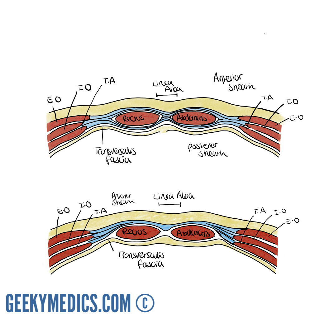 Abdominal Surgical Incisions and the Rectus Sheath | Geeky Medics