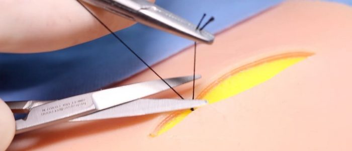 22. Cut your suture flush with the knot to prevent suture ends protruding through the skin