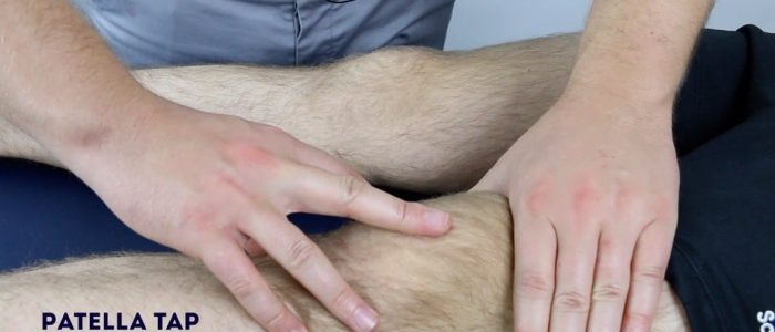 Patellar Tap Knee Examination