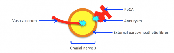 Surgical third nerve mechanism