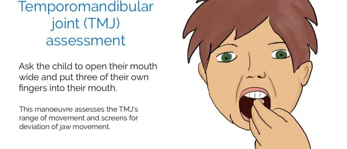 TMJ joint assessment