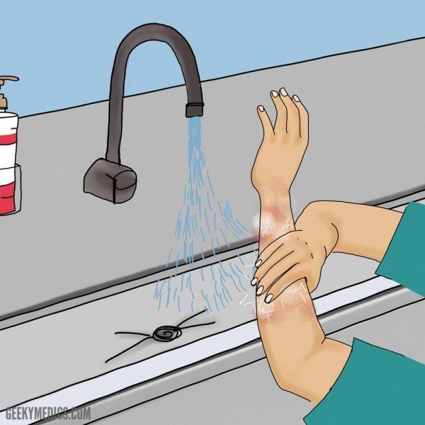 Surgical hand scrub - elbows