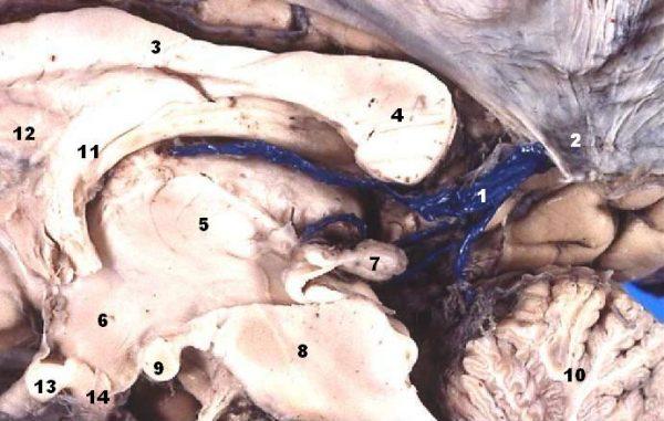 Figure 3: Great cerebral vein (1); splenium of corpus callosum (4); cerebellum (10); fornix (11); septum pellucidum (12)
