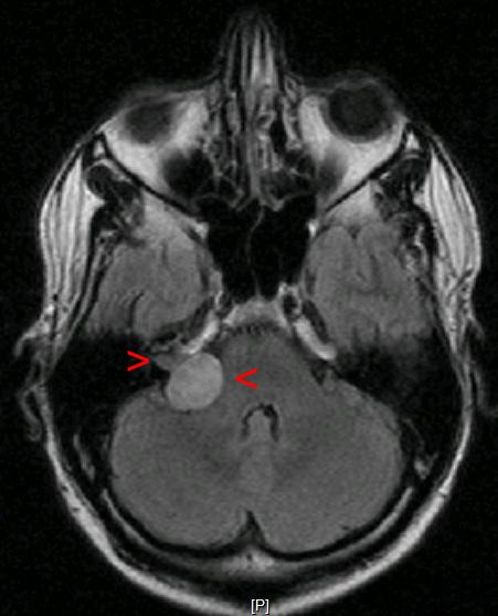 MRI with contrast of a right-sided acoustic neuroma