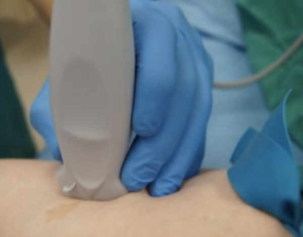 ultrasound-guided IV access
