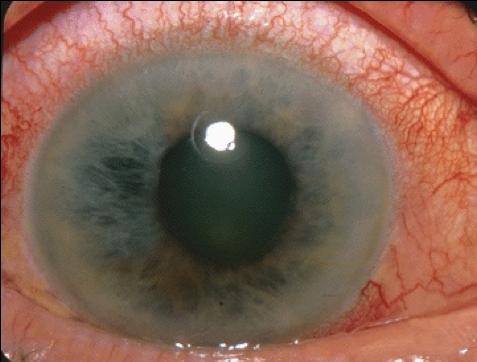 Acute Angle Closure Glaucoma