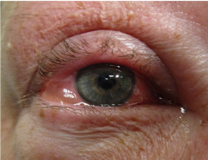 Allergic conjunctivitis with chemosis