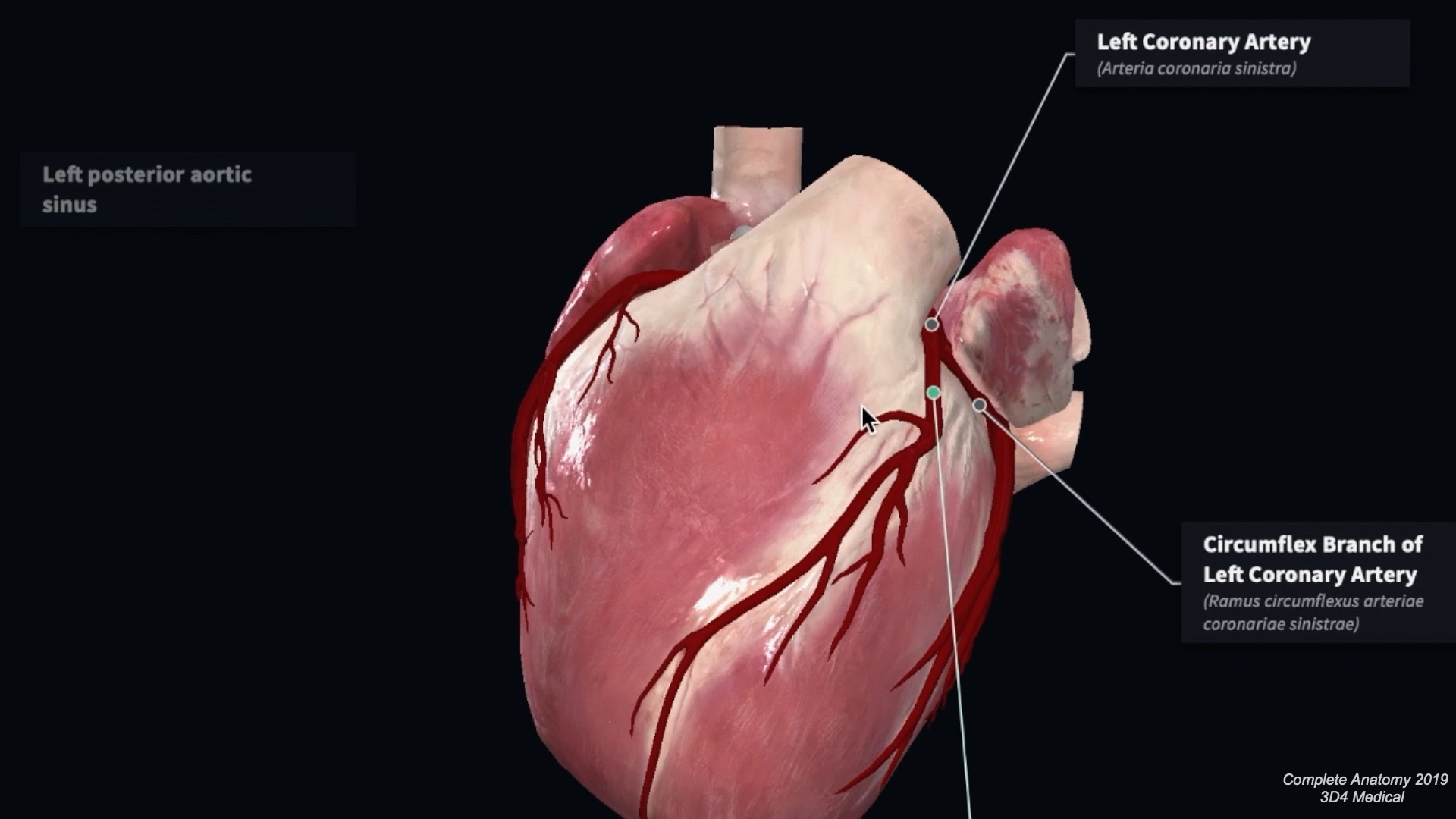 what are the major branches of the left coronary artery