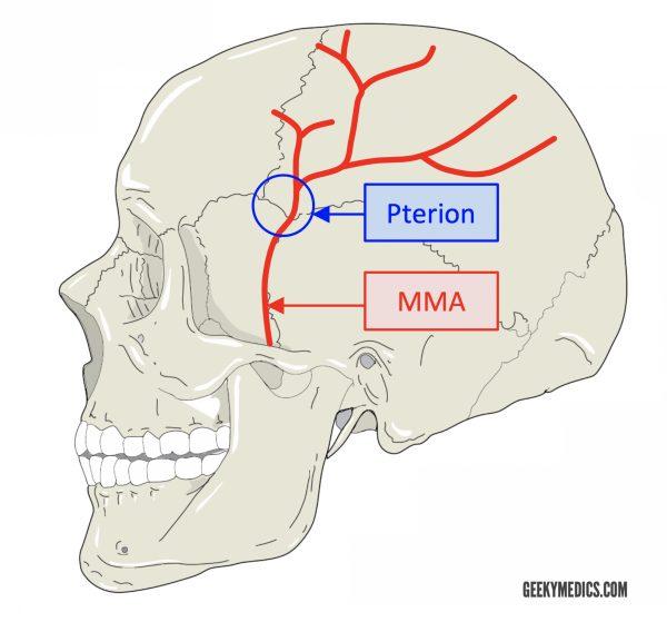 Artère méningée moyenne et ptérion