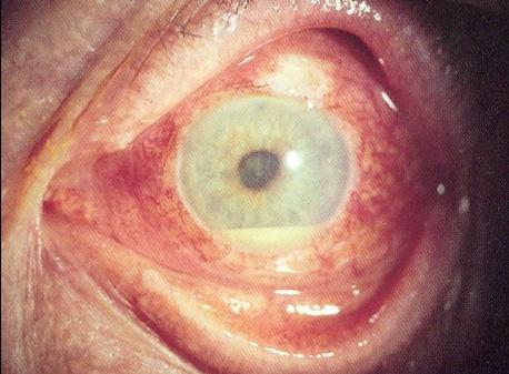 Severe Acute Anterior Uveitis