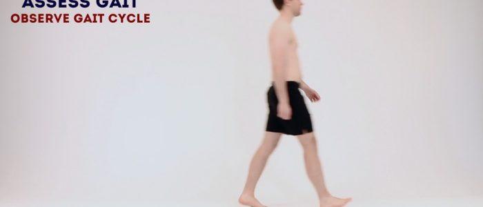 Observe gait