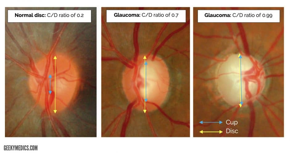 Fundoscopic Appearances of Retinal Pathologies | Geeky Medics C Cup Vs D Cup Comparison