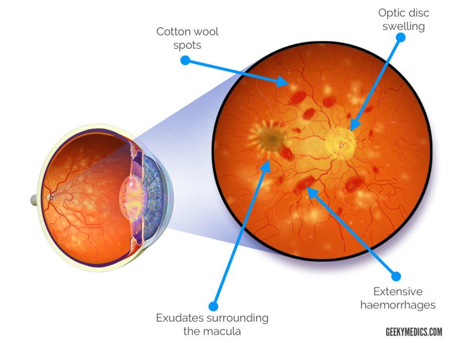 Hypertensive Retinopathy Illustration