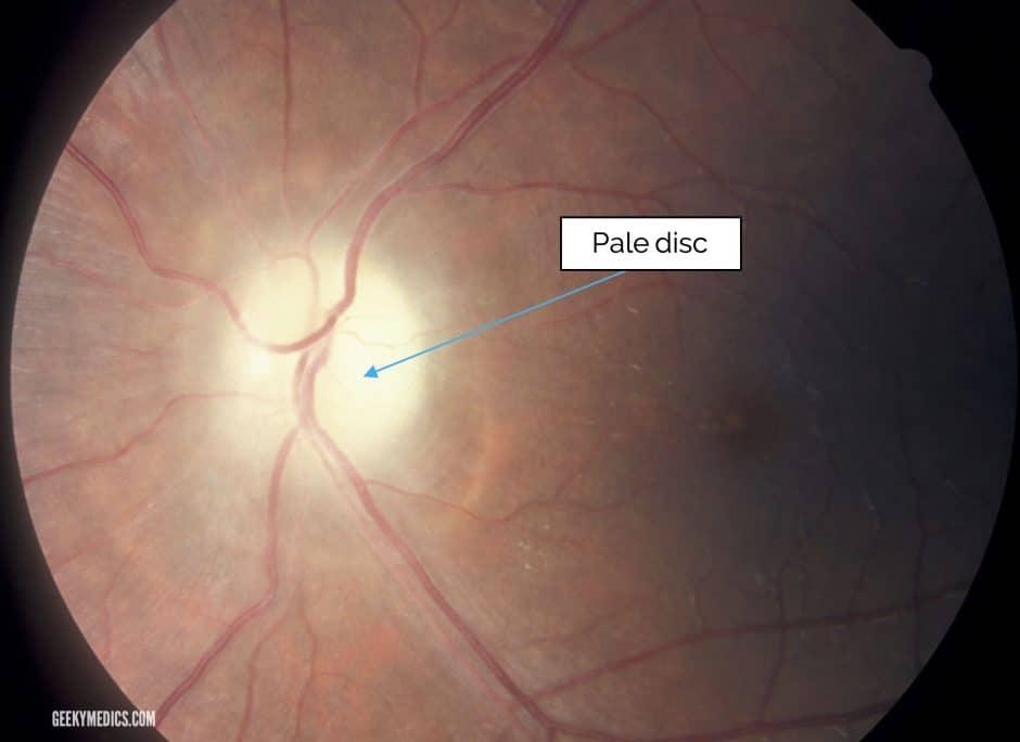 Optic Nerve Atrophy (Pale Optic Disc)