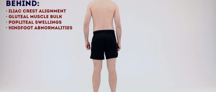 Inspect the posterior aspect of the knee