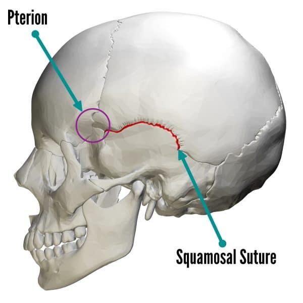 Squamosal suture