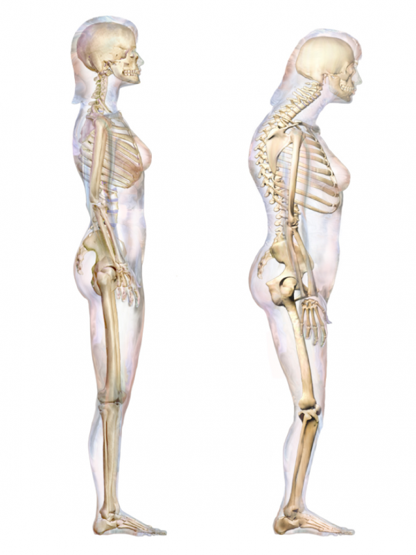 Note the excessive anterior curvature of the vertebral column in the patient on the right, leading to a stooped posture.