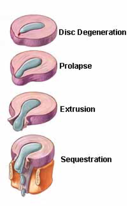 The four stages of disc herniation. Depending on the severity of injury, any stage can be seen at onset, but progression of untreated disc herniation always occurs in the order of superior to inferior. Note the displacement of the annulus fibrous and nucleus pulpous in each stage.