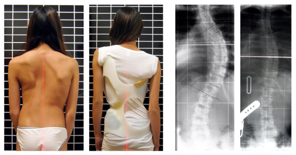 A series of pictures depicting scoliosis. Far left: scoliosis before treatment. Note the lateral curvature of the thoracolumbar spine, and the discrepancy in inter scapular height. Middle left: A brace used to treat scoliosis. Middle right: X-ray depicting the lateral curvature of the vertebral column. Far right: X-ray after treatment.