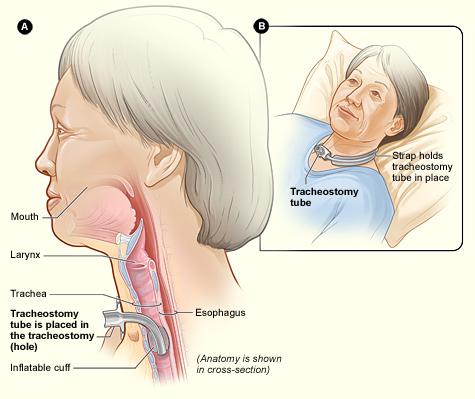 Tracheosomy