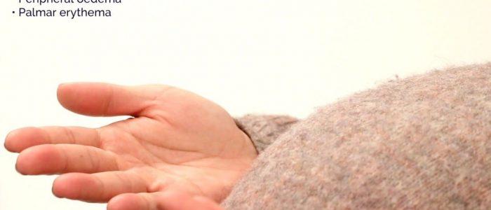 Pregnancy swollen hands