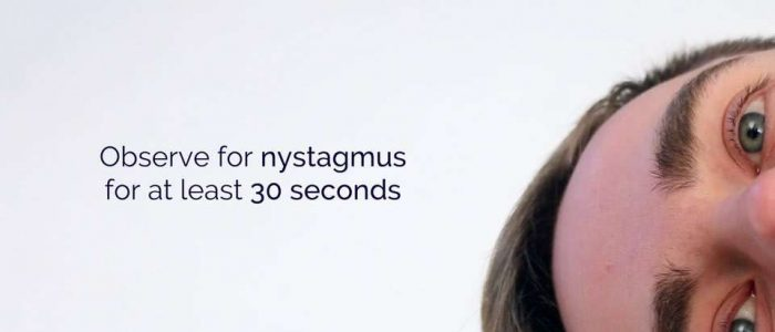 Observe for nystagmus